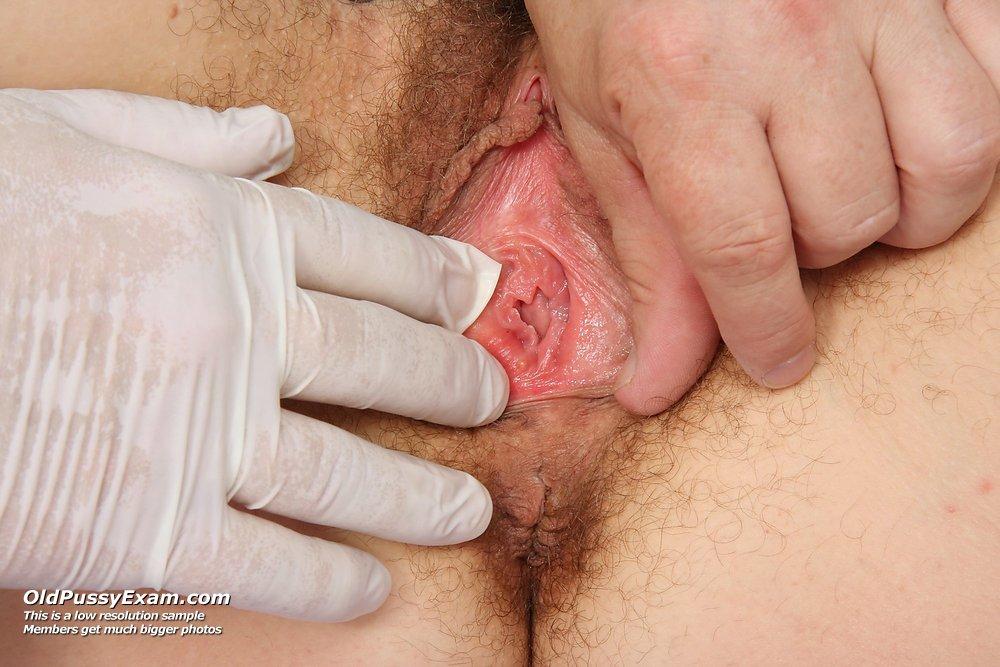 волосатая пизда у гинеколога порно фото